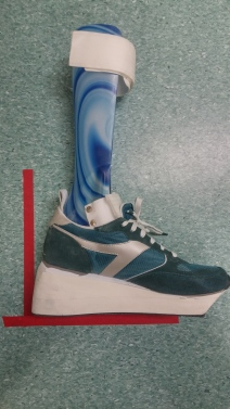 The foot is pointing down INSIDE the shoe, but the combination of the shoe and the AFO, allows the shank (leg) to incline (relax forward) to 10 degrees (the desired final alignment)
